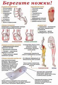 Лучшие лекарства от артроза тазобедренного сустава