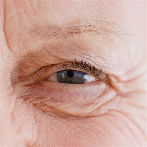 eye wrinkle expert