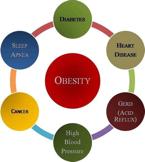 Oorzaken van obesitas