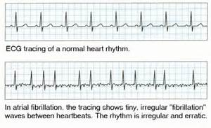... and treatment of atrial fibrillation - Chest Heart & Stroke Scotland  Heart Diseases Arrhythmia