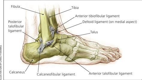 Update on Acute Ankle Sprains - American Family Physician