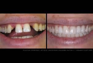 Partial Dental Bridge Front Teeth