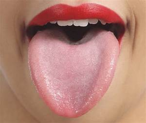 White Bumps On Tongue  Causes And Treatment