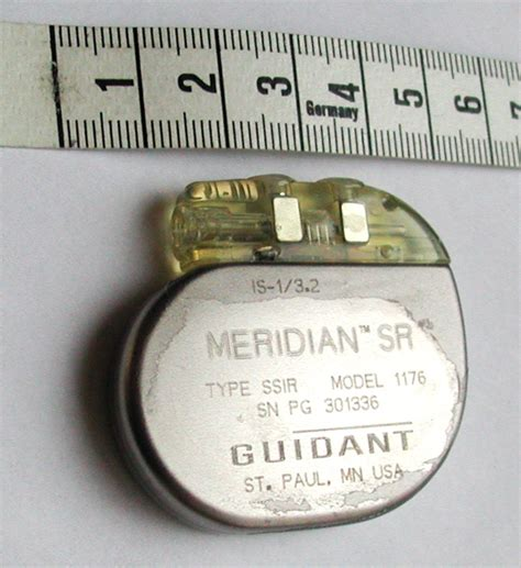 chambre implantable perry j greenbaum a hopps the cardiac pacemaker