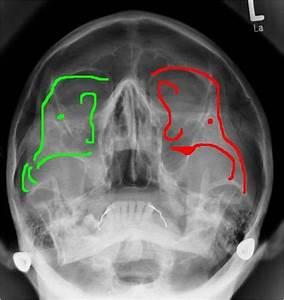 EM1 00: Facial Fractures (Recap) at Touro University (NV ...