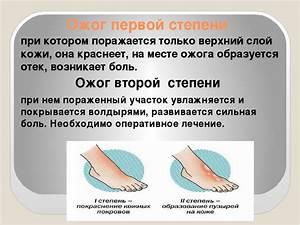 Термальные источники на камчатке и псориаз
