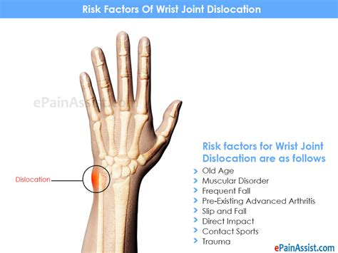 9 Major Medical Conditions That Cause Wrist