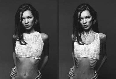 pro ana bildergalerie fotos von schlanken girls magersucht