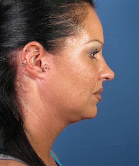 double chin surgery liposuction  san diego ca dr hilinski