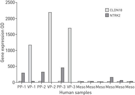 malignant pleural mesothelioma history controversy