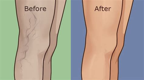 top  home remedies  remove varicose veins   legs
