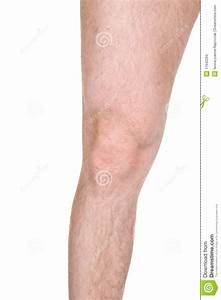 Male Knee Stock Image  Image Of Background  Alluring