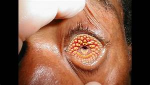 10 Most Horrifying Rare Diseases And Disorders