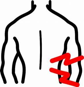 Hernia rug uitstraling been
