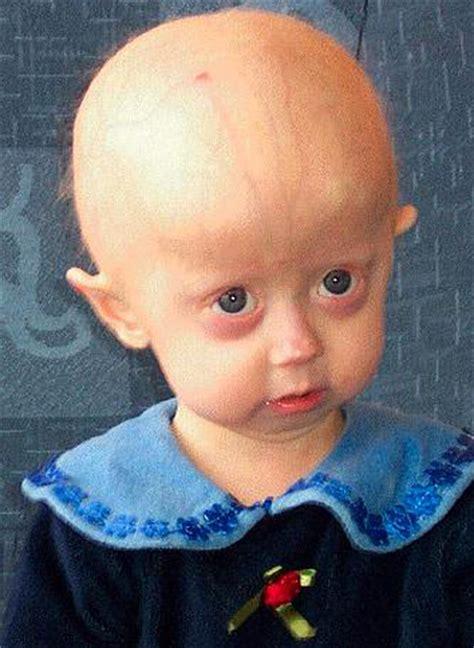 progerie wikipedie