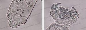Skin Flukes  Gyrodactylus  And Gill Flukes  Dactylogyrus  - Fishhealth