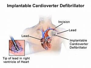 Implantable cardioverter-defibrillator