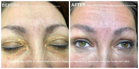 Cholesterol Deposits Removal Before and After | Beauty