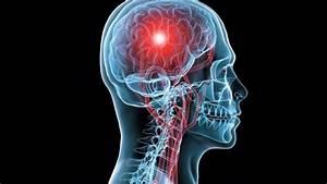 latino 4u ¿Qué es un derrame cerebral? - latino 4u