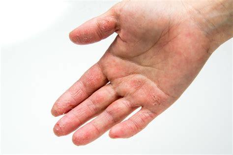 手のひら に ブツブツ