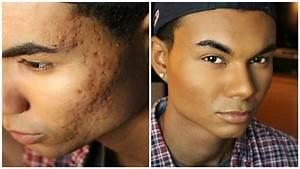 Drug Store Foundation Routine for Men - Acne & Acne ...