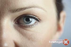 Солкосерил и димексид от морщин отзывы косметологов мазь или гель