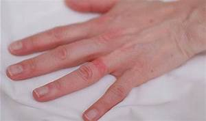 wedding ring rash blues With wedding ring dermatitis