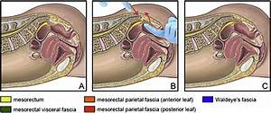 Closed Manual Reduction Of Anterior Dislocation Of Coccyx