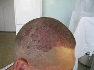 Дайвонекс отзывы при псориазе головы