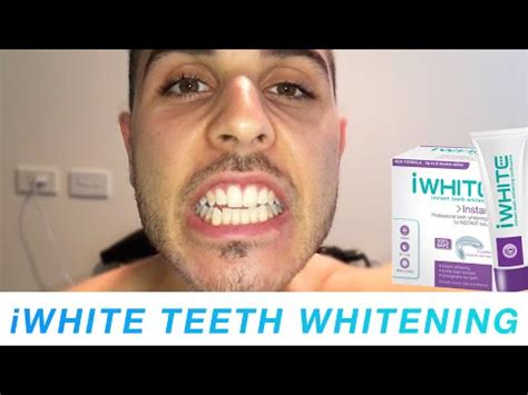 does iwhite instant teeth whitening work meet chris