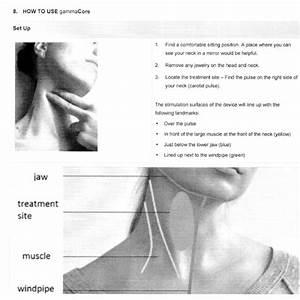 Effective Migraine Headache Relief  Gammacore Device
