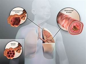 Copd Symptoms And Stages