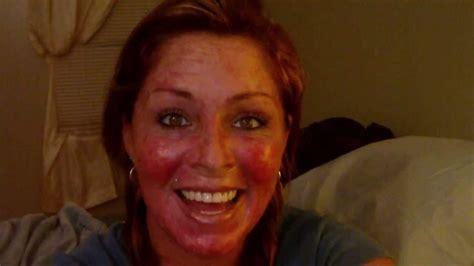skin cancer  vlog  efudex video journal  youtube