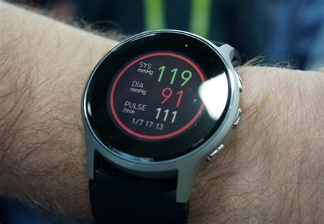 This is the world's first smartwatch with accurate blood