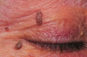 Вирус папилломы человека папилломы на лице лечение