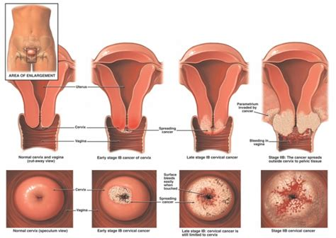 Reproduksi Rahim Wanita Cervical Cancer Physiopedia
