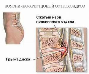 Избавление от остеохондроза навсегда