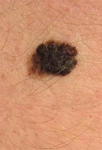 Hundreds of cancer possibilities arise from common skin mole mutation  Skin Cancer Birthmarks - pigmented