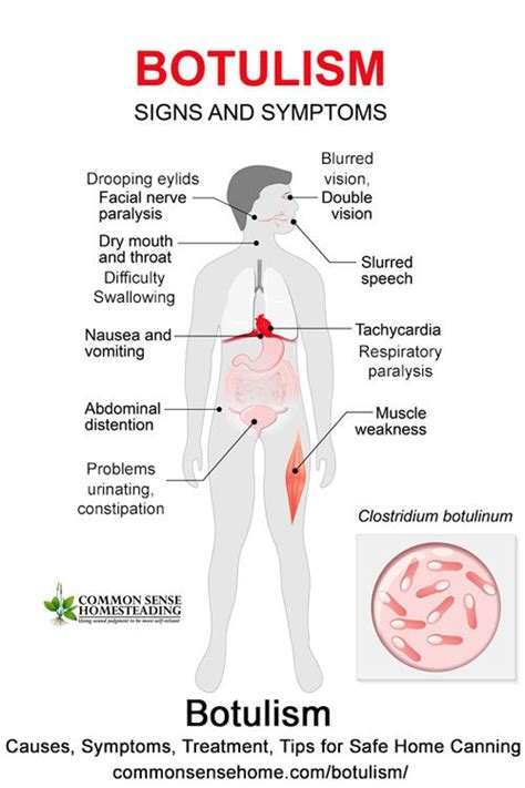 botulism causes symptoms treatment tips for safe home