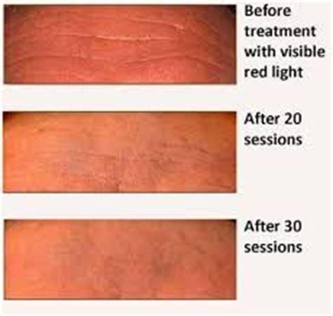 led red light therapy spider veins 7 colors photon pdt led skin rejuvenation mask blue