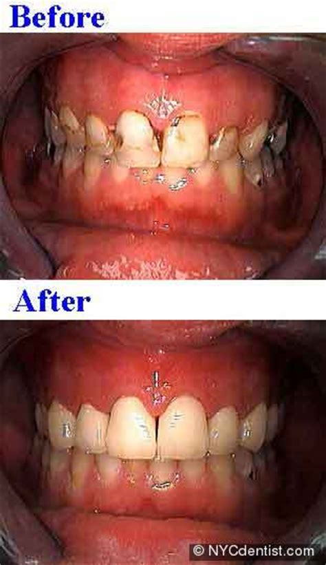 addiction dentistry treatment  drug  alcohol abuse