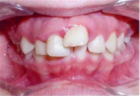 """Start your free online quote and save $610! Dentist Tells His Story - """"Medicaid for Braces is Over"""" - Texas Dentists for Medicaid Reform"""
