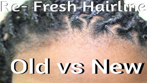 fix  hairlineedges box braids  twists youtube