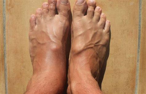geschwollene knoechel und fuesse besser gesund leben