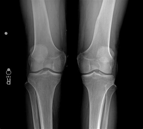 knee joint arthroscopy osteonecrosis ray collapse rays medial space bone condyle loss showing femoral ortho newsletter web patient