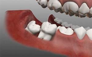 Зуб мудрости болит сустав