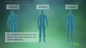 Spinal Deformities  Symptoms
