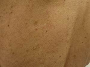 Huidaandoeningen gezicht