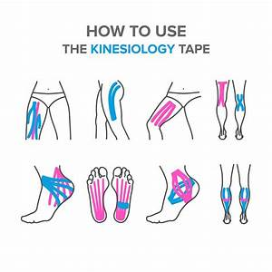 A Complete Guide On Plantar Fasciitis Taping Methods