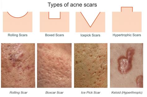 What Really Happens When You Get Laser Treatments for Acne ...